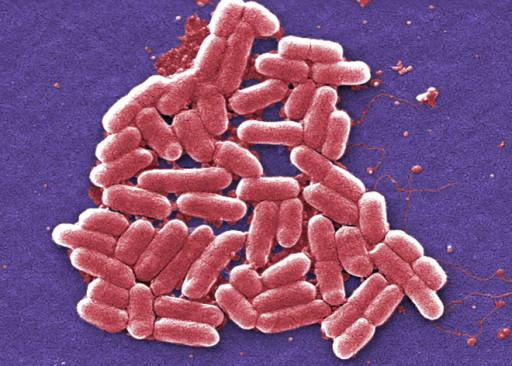 Batteri E.Coli al microscopio elettronico - © Wired.com